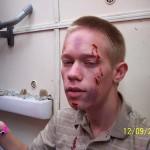 realistisch geschminkter Verletztendarsteller
