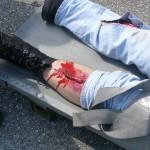 Verschiedenste Verletzungen finden die Übungsteilnehmer vor.