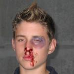 Einer der geschminkten Jugendfeuerwehrleute, die für die Übung die Opfer spielten <br>© FF Stellingen<br