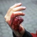 Eine dargestellte Verletzung